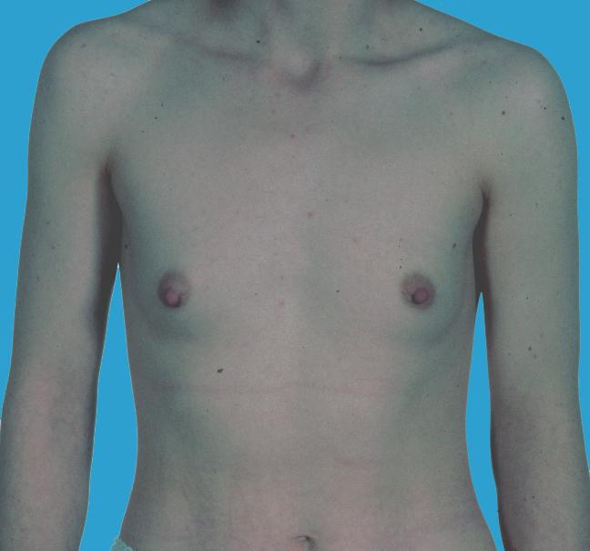 Brustvergrößerung auf Kasse