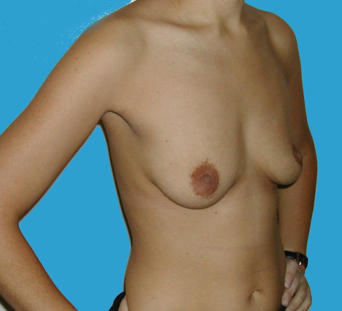 Brustvergrößerung