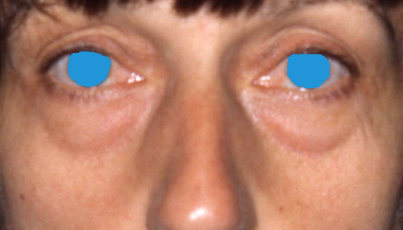 Unterlider - Tränensäcke