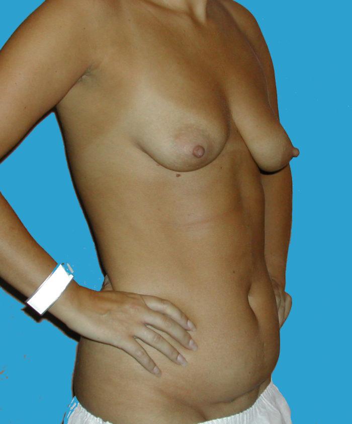 Brustvergrößerung 240cc, Liposhaping, MiniBauchdeckenplastik