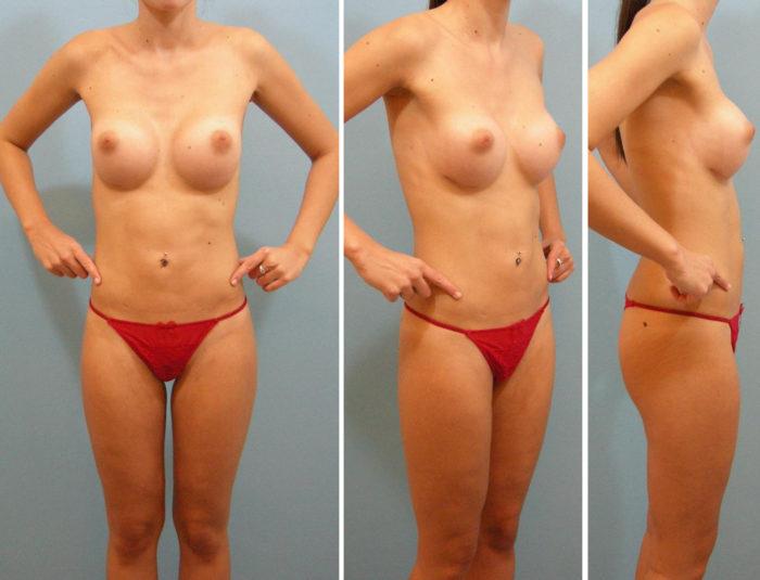 Brustvergrößerung und Liposuktion