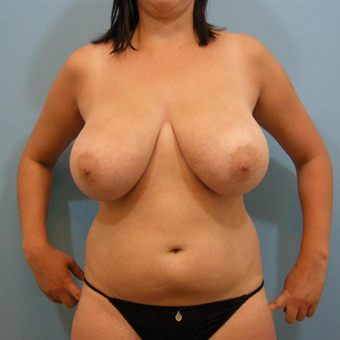 Brustverkleinerung vertikal und Liposuktion Bauch