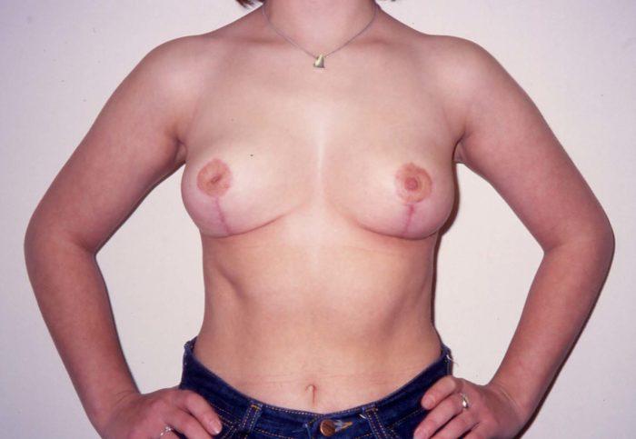 Wunsch nach narbensparender Brustverkleinerung, vertikale Narbe