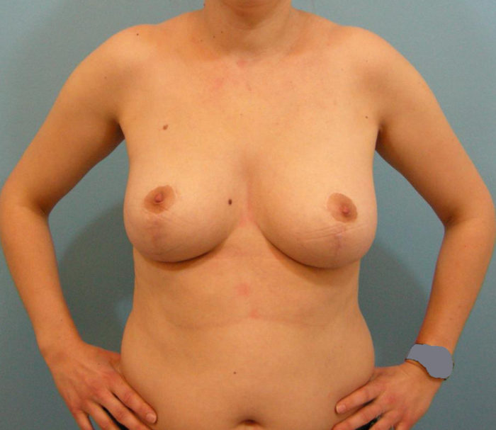 Brustverkleinerung vertikal