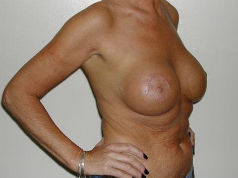 Brustlift und 330cc Augmentation mit kleiner Narbe wegen Hängebrust