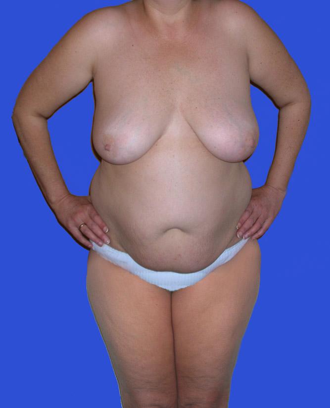 Fettabsaugung Bauch Oberarme