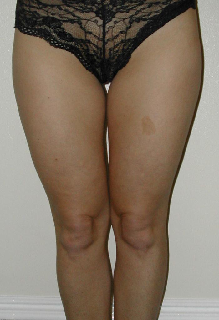 Knie und Oberschenkel vor Liposhaping