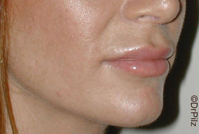 Lippen nach Vergrößerung mit Eigenfett