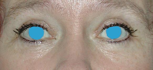 Augenlider nach Blepharoplastik