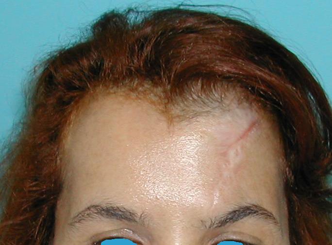 Tumor Stirnbereich