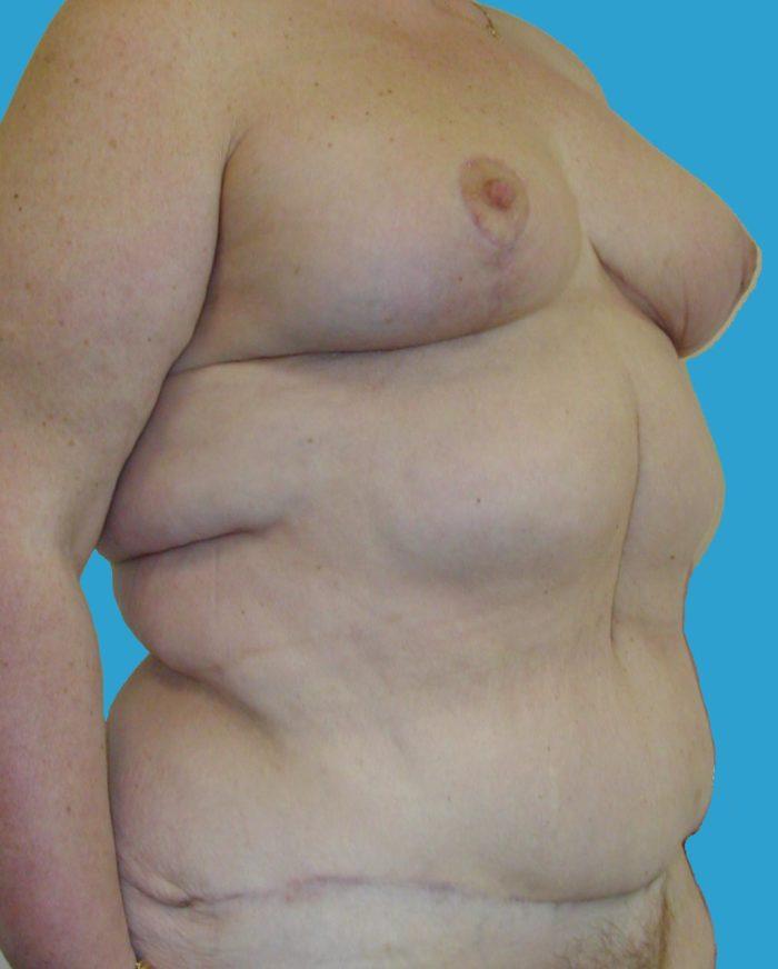 nach Brustlift, Bauchdeckenstraffung und Lipo