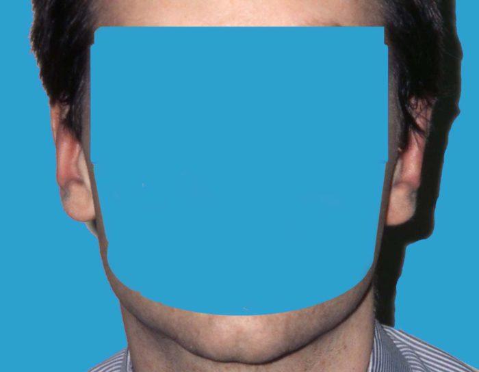 Abstehende Ohren - Korrektur