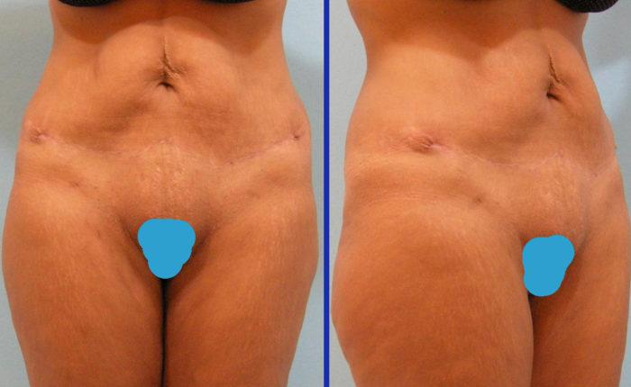 Bauchdeckenstraffung - Abdominoplastik